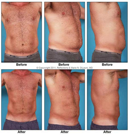 Liposuction to Stomach area by Marie DiLauro MD     ReflectionsLiposuction Men Stomach