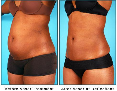 Liposuction, TopDocs com