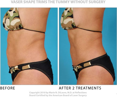 Vaser Shape to tummy before and after photos-3