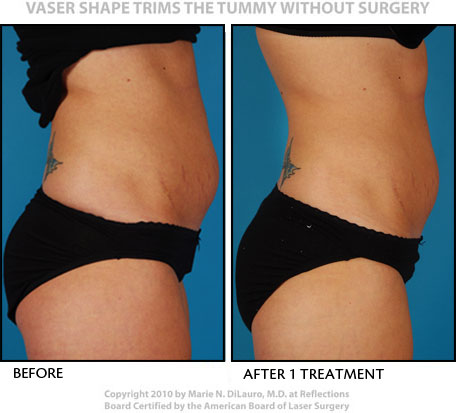 Vaser Shape to tummy before and after photos