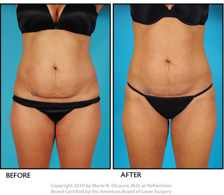 Vaser Shape to tummy before and after photos-2