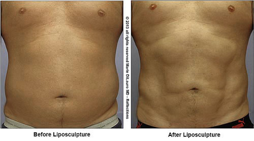 Liposuction-to-abdomen-for-definition-marie-dilauro-md-reflections-614-885-3500