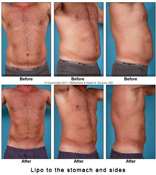 liposuction-to-man-stomach