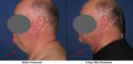 Physician-Worthington-liposuction-under-chin-men